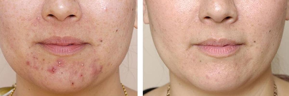 Varför har jag fortfarande acne när jag har passerat tonåren?